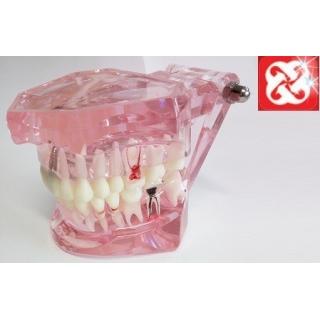 Tipodonto Con Implantes