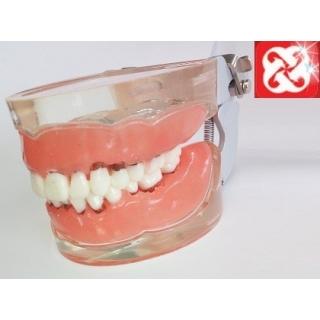 Tipodonto Periodontitis